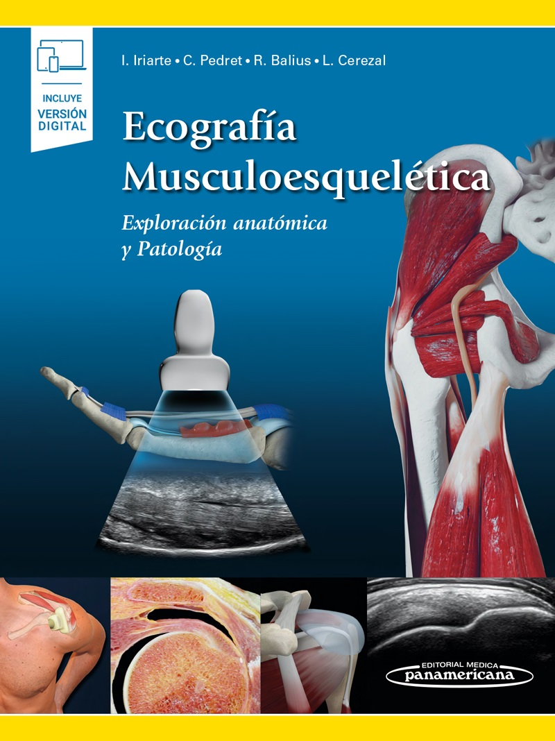Ecografía Musculoesquelética. Exploración de la Anatomía y la Patología. Incluye eBook
