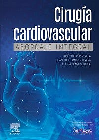 Cirugía cardiovascular abordaje integral