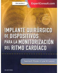 Implante quirúgico de dispositivos para la monitorización del ritmo cardiáco + ExpertConsult