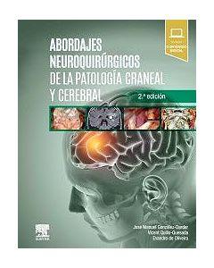 Abordajes Neuroquirúrgicos de la Patología Craneal y Cerebral + Acceso Online