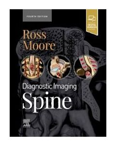 Diagnostic Imaging: Spine