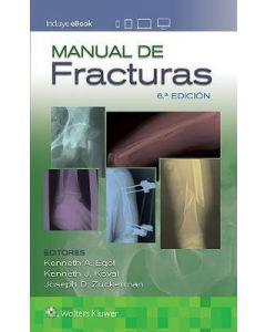 Manual de fracturas .